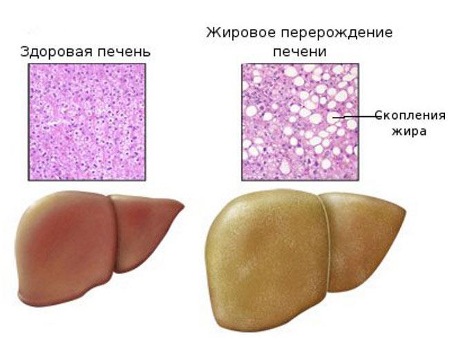 состояние клеток печени