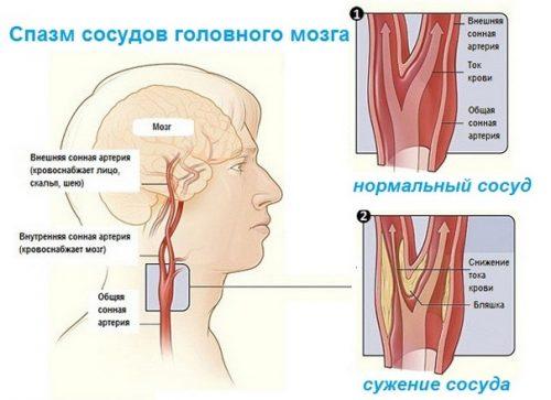 Спазм сосудов головного мозга: симптомы, лечение, таблетки и ...