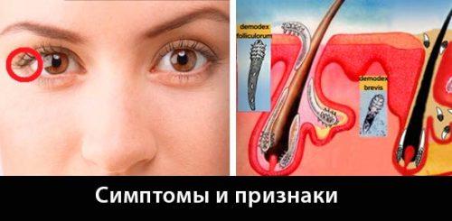 Какие бывают паразиты в глазах человека?