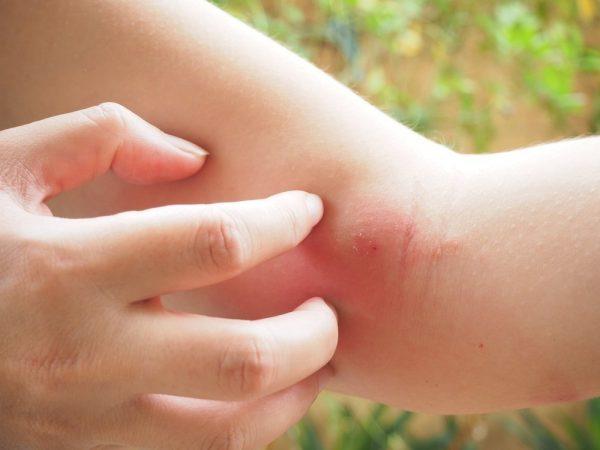 Что делать при укусе мошки: как снять отек, чем мазать, лечение в домашних условиях